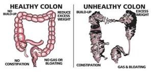 healthy_and_unhealthy_colon1